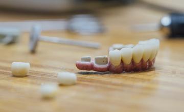 Diplomado  Clínico en Odontología Estética Restauradora
